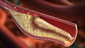 چربی و فشار خون